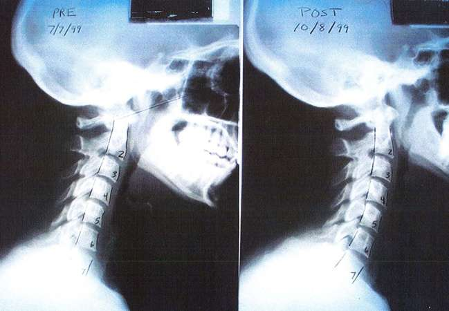 Neck sprain treatment (motor vehicle accidents-radiology)